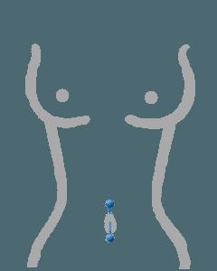 Bauchnabelpiercing