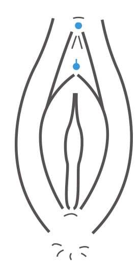 Vorhaut entfernen klitoris Video einer